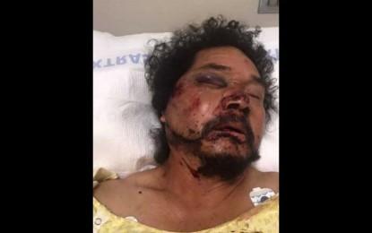 Afroamericanos golpean a mexicano en LA; ciudadanos reúnen 80 mil dólares