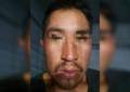 """Detienen a """"El Pato"""" por golpear con una piedra a adulto en el albergue San Andrés"""
